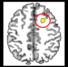 Image of MRI scan of brain with area affected my meditation highlighted in yellow.