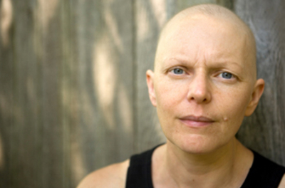 woman with no hair looking seriously into camera