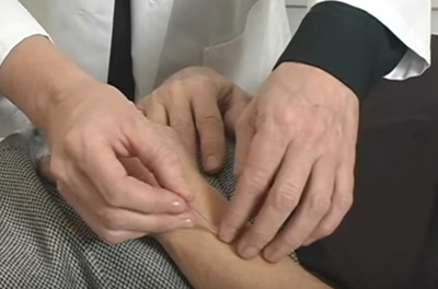 close up of an acupuncturist inserting needles in a patient's wrist